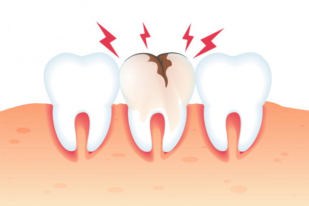 The Truth About Cavities