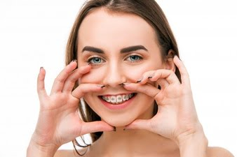 What are Clear Orthodontic Braces for Adults?