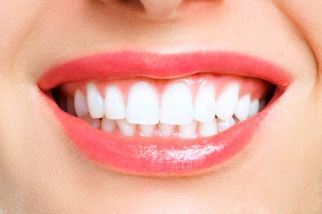 Are you Ready for Professional Teeth Whitening?